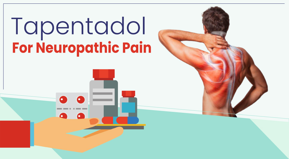 Use Tapentadol 100 mg Tablet to Find Quick Relief from Body Pain